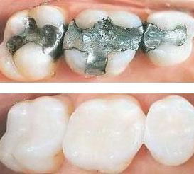 Mercury Free Fillings