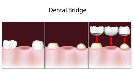 3 Unit Dental Bridge