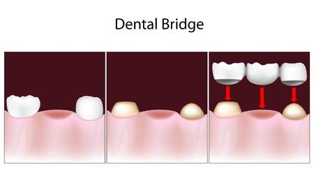 3 Unit Dental Bridge