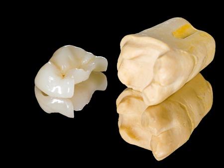 Dental Onlay Restoration