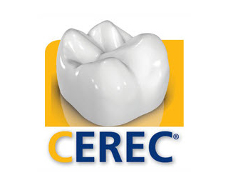 Digital Impressions For Invisalign Using Cerec