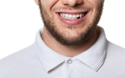 Why Replace Missing Teeth?