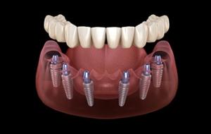 Dental Implant | Westlake Hills